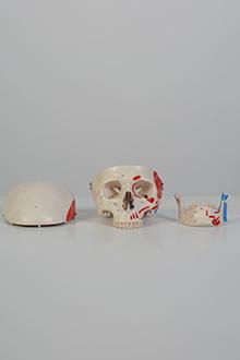 Skull model #1